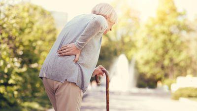 Frau mit Ründrücken / Witwenbuckel durch Osteoporose