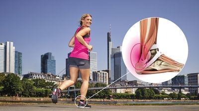 Anatomy: Achilles tendon