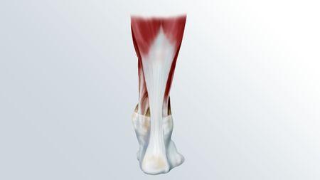 Разрыв ахиллова сухожилия