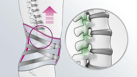 Entlastung der Facettengelenke durch Lumbamed facet Rückenorthese