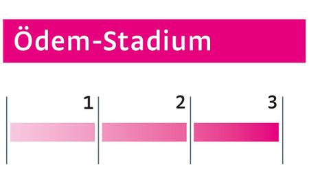 Ödeme Stadium III