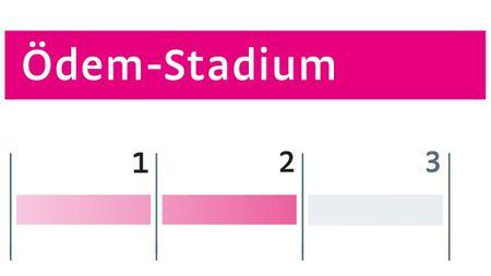 Ödeme Stadium II