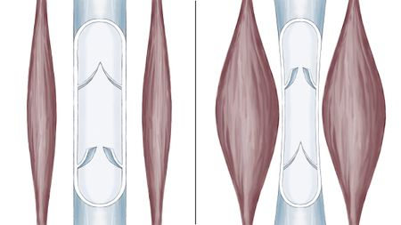 Diagram of the calf muscle pump (left: resting; right: during movement)