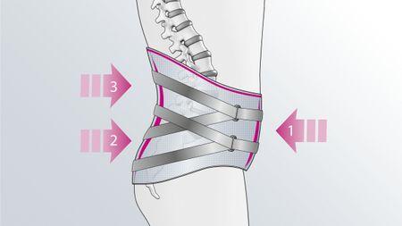3-Punkt-Wirkprinzip der Lumbamed facet Rückenorthese