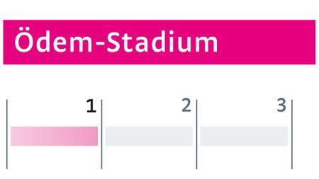 Ödeme Stadium I