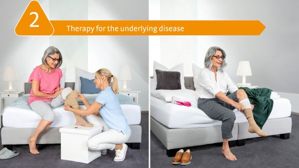 medi Therapy Concept Leg Ulcer: 2. Therapy for the underlying disease