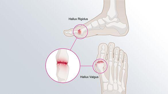 Hallux Valgus: Wenn die große Zehe schief steht und schmerzt