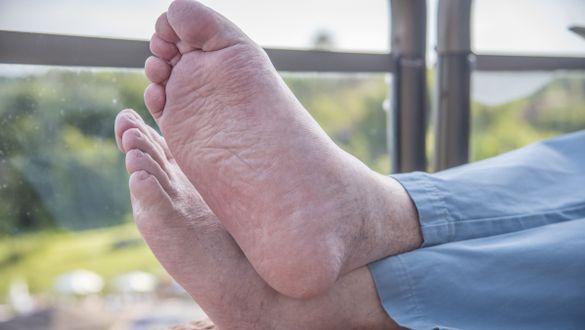 Barfüßiger Mann mit Plattfüßen