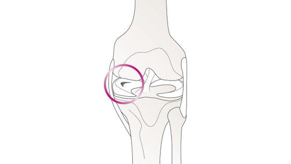 Lesão do menisco