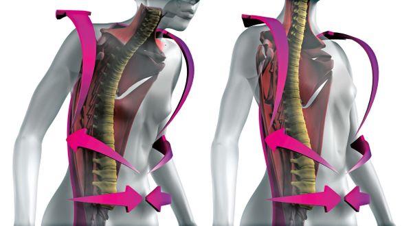 Osteoporose Rückenorthese