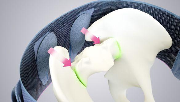 Lumbamed Sacro Wirkungsweise Rückenorthese
