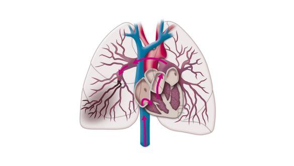 Lungenembolie