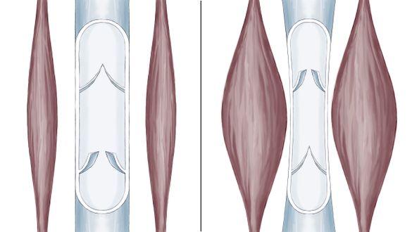 Vadenmuskelpumpe