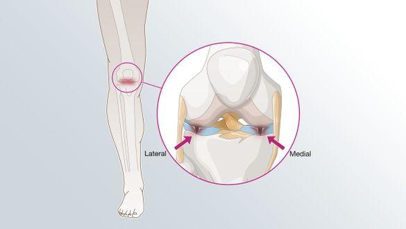 Lesión de menisco
