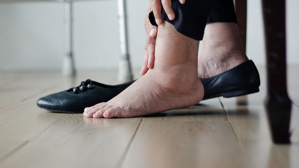 PAD – A possible concomitant disease in venous disorders