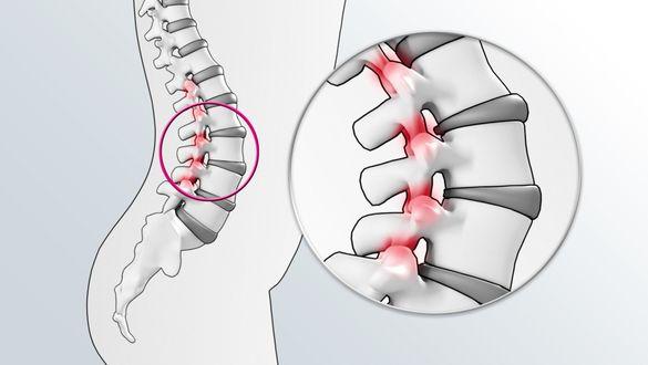 Боль в спине очень частое явление