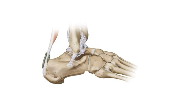 Fractura da articulação tibiotársica