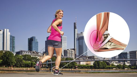Achillodynia is a pain syndrome of the Achilles tendon