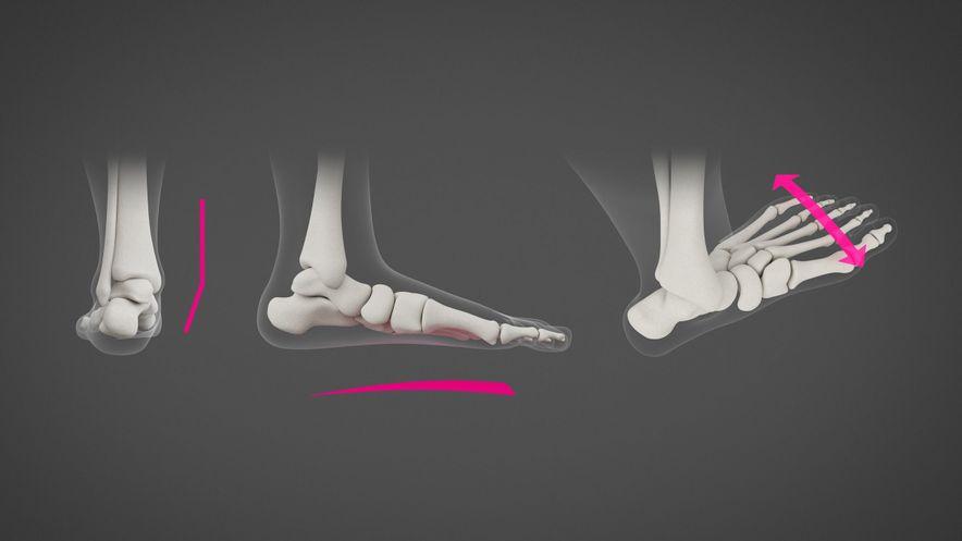 Collage eines Knick-, Senk- und Spreizfußes (Fußfehlstellung)