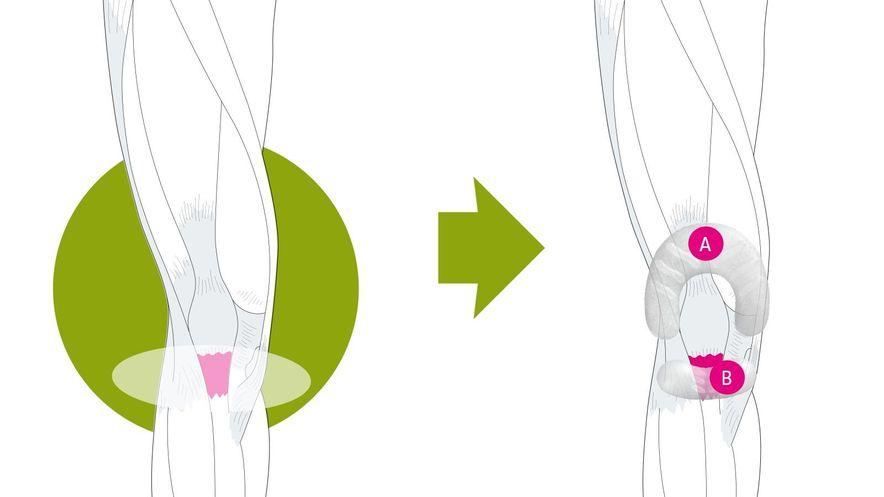 Wirkungsweise der Genumedi PSS Knieorthese