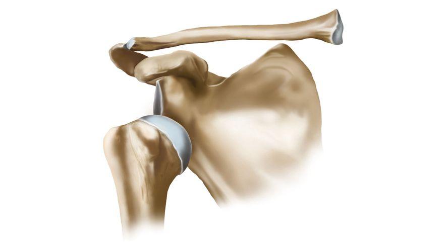 Abbildung einer luxierten / ausgekugelten Schulter