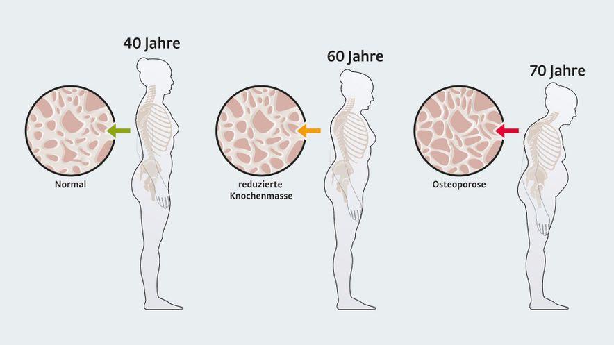 Illustration: Stadien der Osteoporose