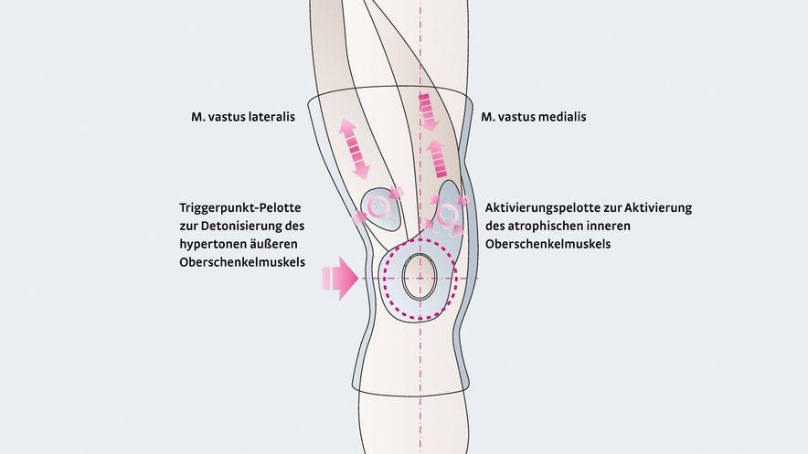 Wirkungsweise der Kniebandage Genumedi PT