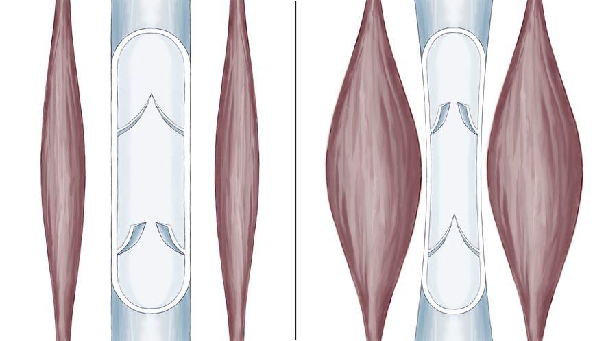 Schematische Darstellung der Wadenmuskelpumpe