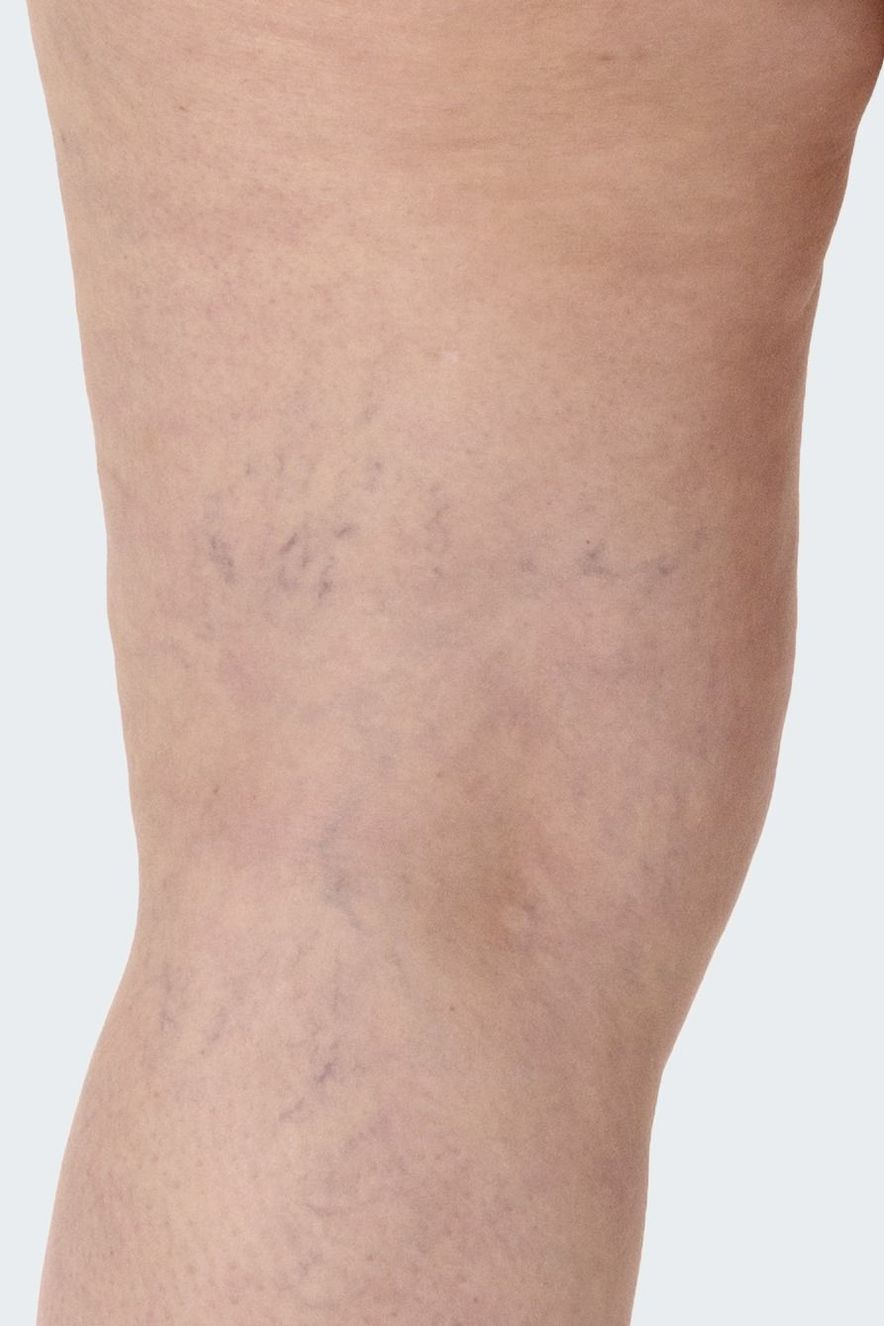 Spider veins look like this