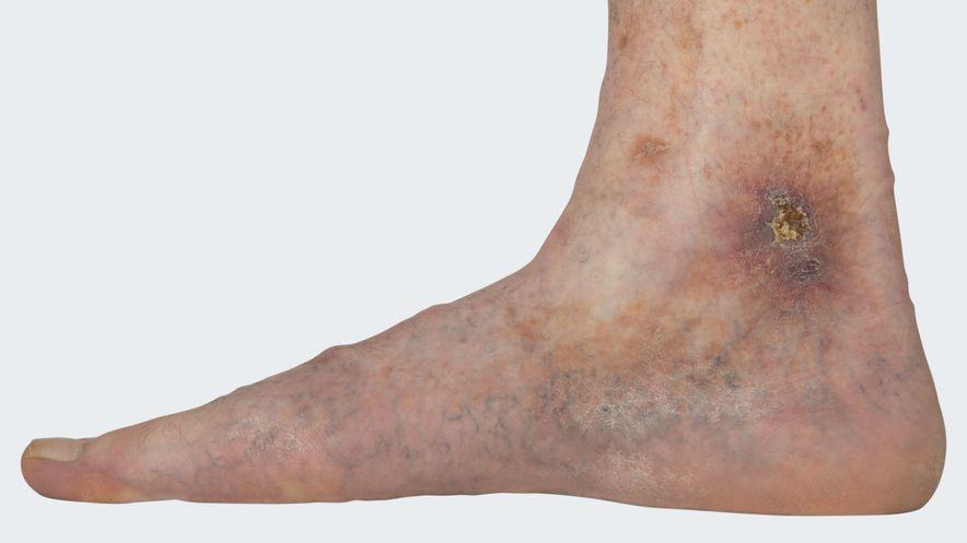 """C6: Varikose mit floridem Ulcus cruris venosum (= """"offenes Bein"""", venös bedingtes Unterschenkelgeschwür)"""