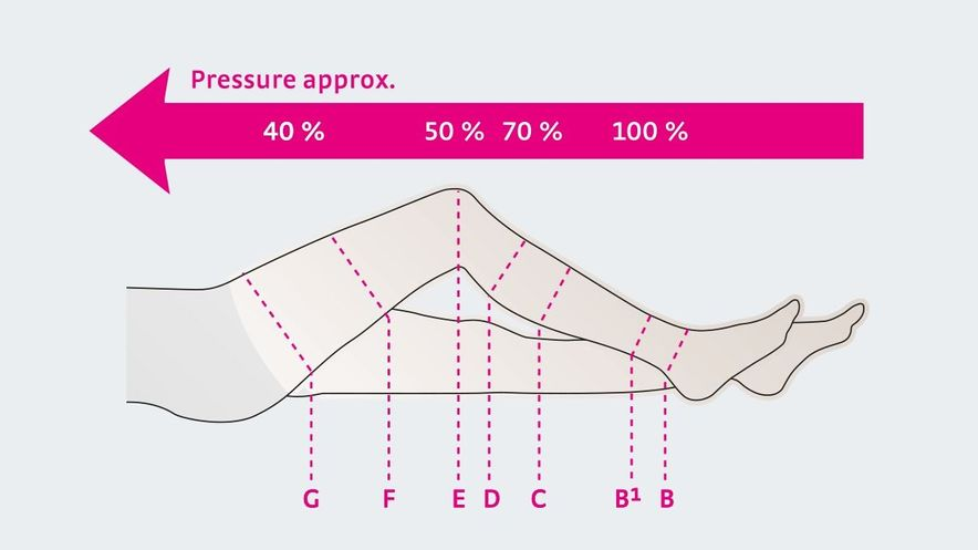 The pressure of compression stockings decreases continuously from bottom to top