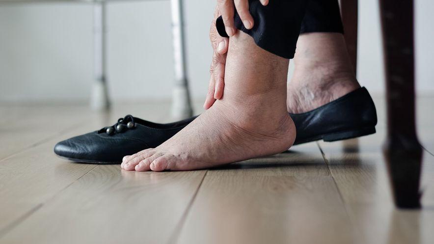 woman swollen feet
