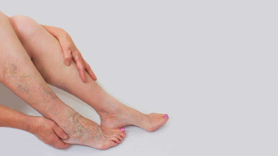 Varicose veins can be easily recognised and identified