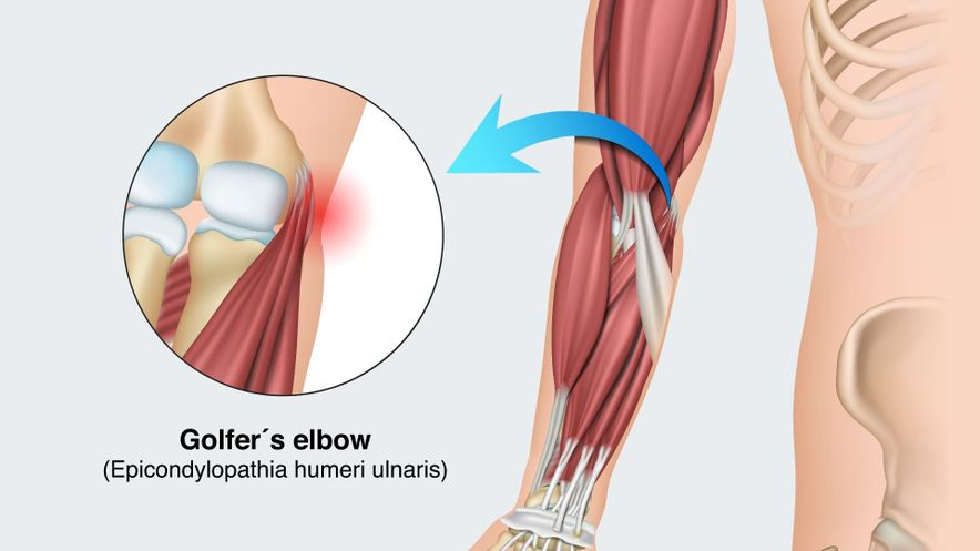 Golfer's elbow (pain on the inside)