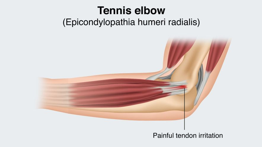 Tennis elbow (pain on the outside)