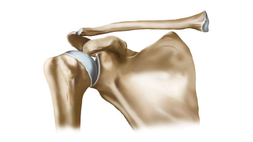 Illustration of healthy shoulder