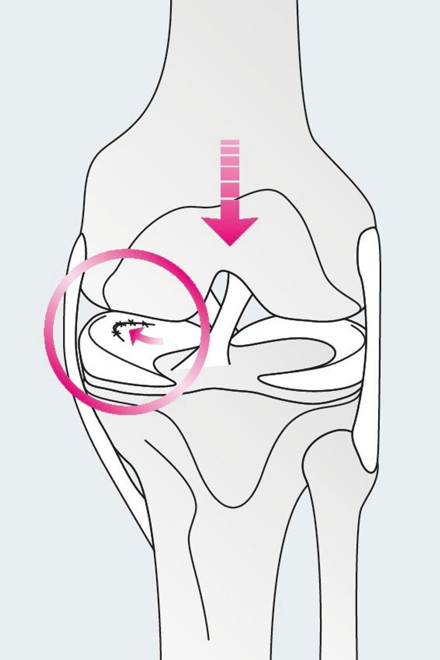 Forms of different meniscus tears