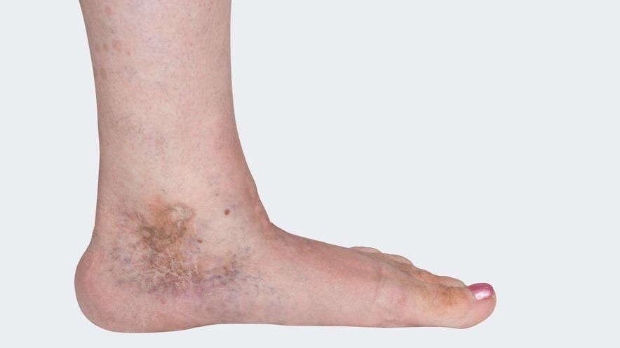 C 5: Varicosis (= varicose vein disorder) with healed ulcus cruris venosum (= leg ulcer, venous-related lower leg ulcer)