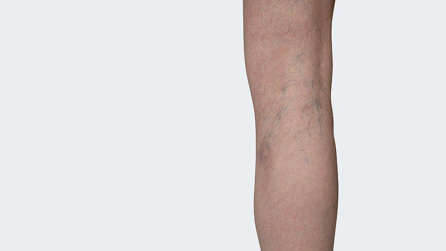 C 1: Телеангиэктазии или ретикулярные вены