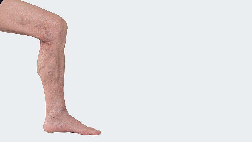C 2: Варикозно измененные подкожные вены без клинических признаков хронической венозной недостаточности