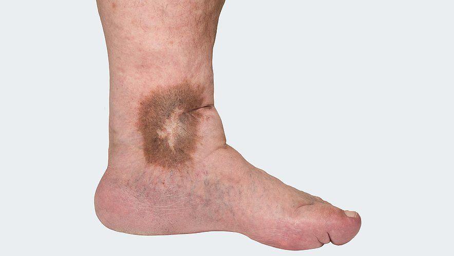 C 4: Варикозно измененные подкожные вены с трофическими изменениями кожи и подкожных тканей, такими как: