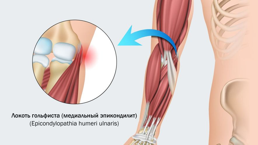 Локоть гольфиста (боль по внутренней поверхности)