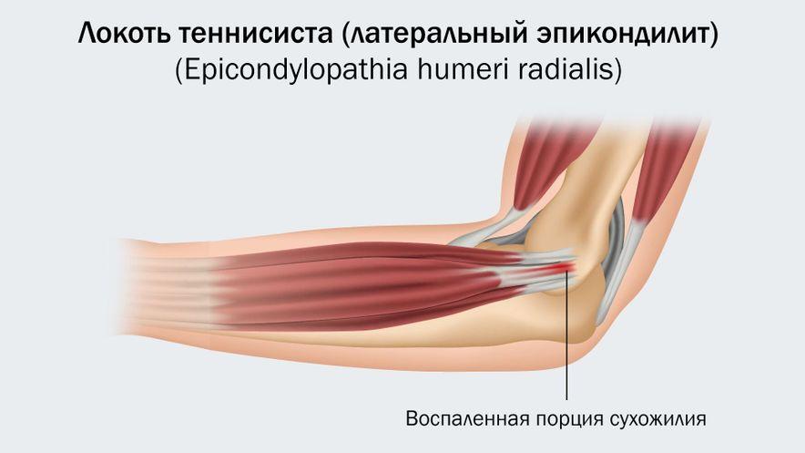 Локоть теннисиста (боль по наружной поверхности)