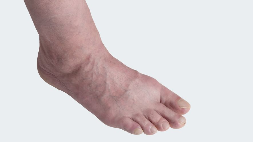 ÖOedema: Swollen ankles / legs, visible and palpable collection of liquid in tissue
