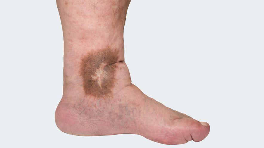 Hautveränderungen: braune Flecken in der Haut (Pigmentierung), entzündliche Veränderungen der Haut (Ekzem), weiße atrophische Narbenherde (Atrophie blanche), Verhärtung des Unterhautgewebes im Rahmen chronischer Ödeme (Dermatoliposklerose)